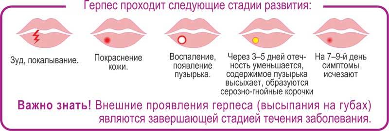 """Герпес-Стоп против герпеса - Фармацевтическая компания """"MU LIN SEN"""""""